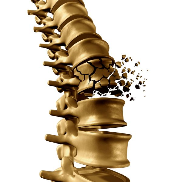 脊髄損傷イメージ
